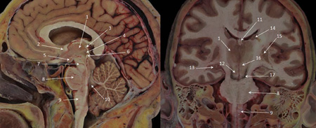 Neuroplasticity-of-Supraspinal-Structures